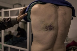 A migrant shows the wound caused by the beating by Croatian police while he was trying to cross the border between Bosnia and Croatia inside the Velika Kladusa refugee camp, in Bosnia and Herzegovina on November 30, 2018.