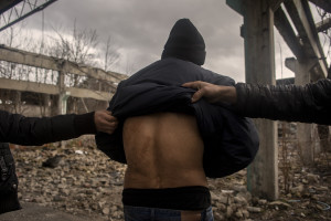 A migrant from Afghanistan shows the scars that according to his testimony, would have been caused by the violence of the Croatian police, while several months ago he tried to cross the border in Bihac, Bosnia and Herzegovina on January 22, 2021. Lots of migrants avoid staying inside the Bosnian official refugee camps because of the hard conditions in which they are forced to live and also because the people hosted in the official camps  cannot go out freely.